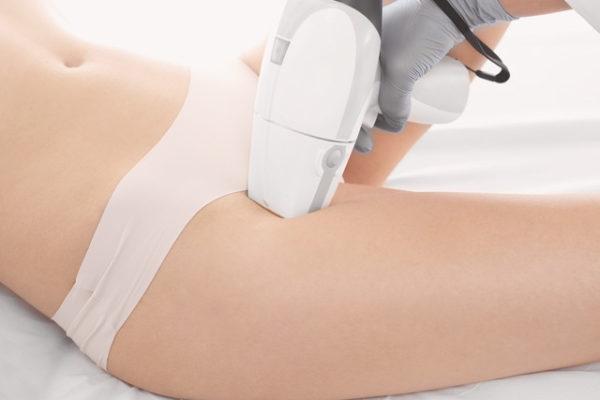 Hårborttagning med Diod-laser