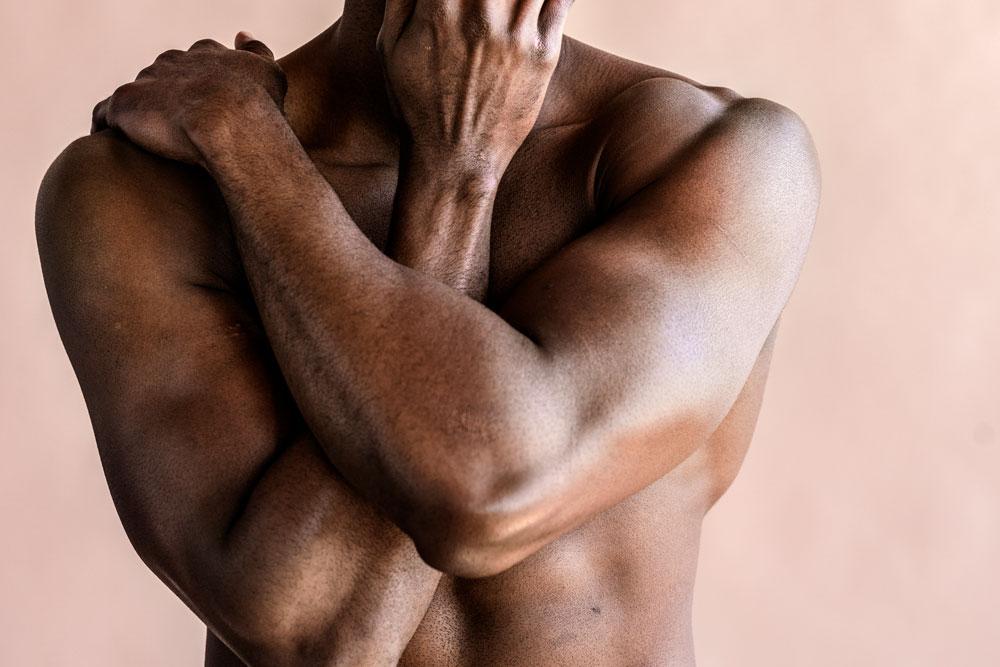 Gynekomasti Bröstförminskning hos män